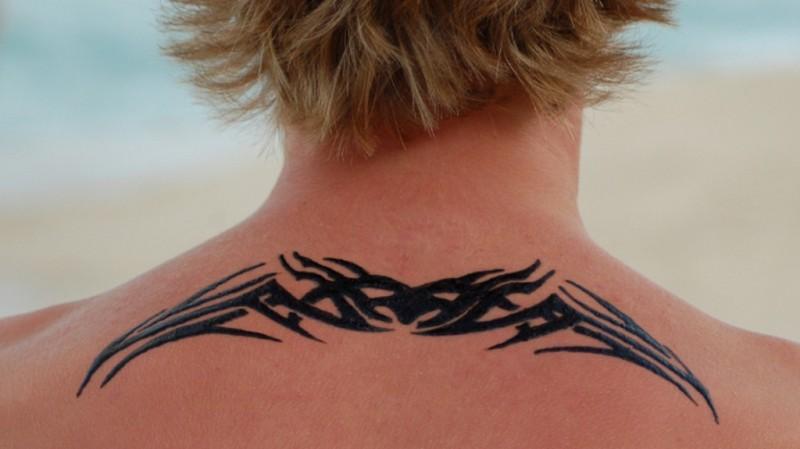 Black Henna Tattoo Reaction
