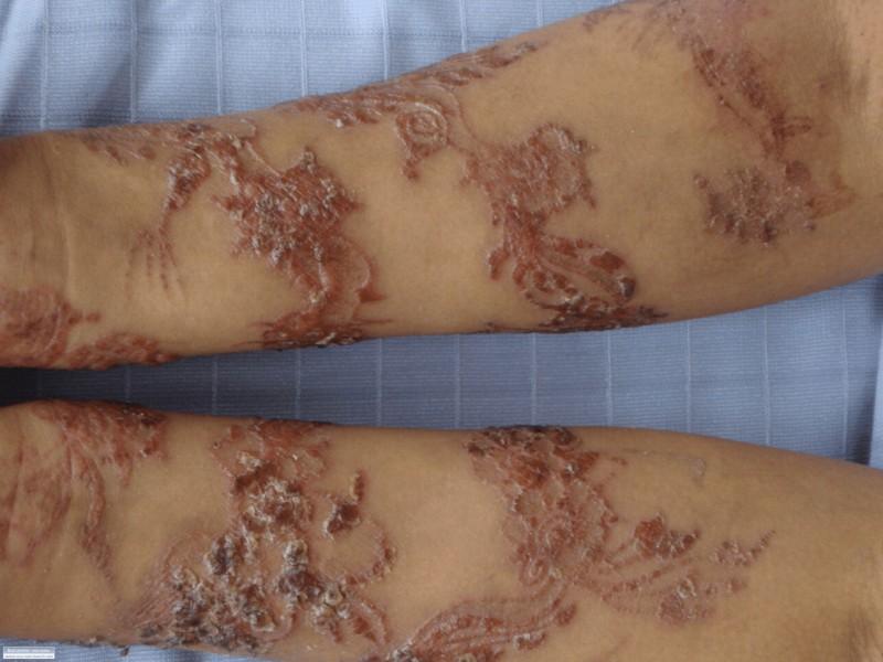 Black Henna Tattoo Scars